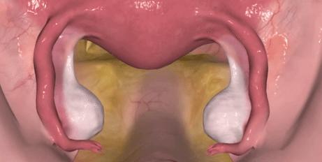 Uterus hysterectomy