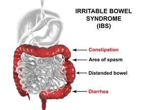 Endometriosis Irritable Bowel Syndrome