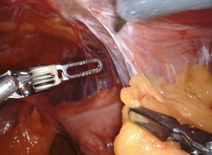 Endo Complex surgery